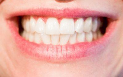 La importancia de realizarse una limpieza dental profesional