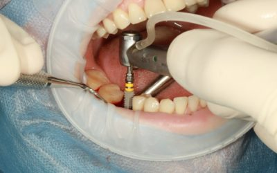 Resuelve todas tus dudas sobre los implantes dentales
