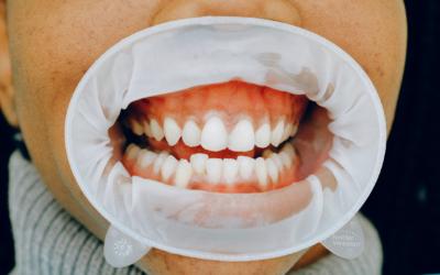 Salud periodontal y salud general